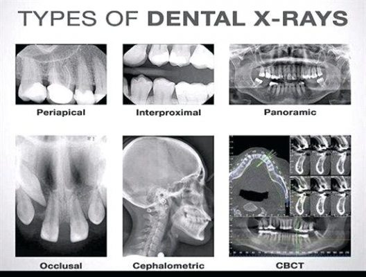 Different Types Of X-Rays